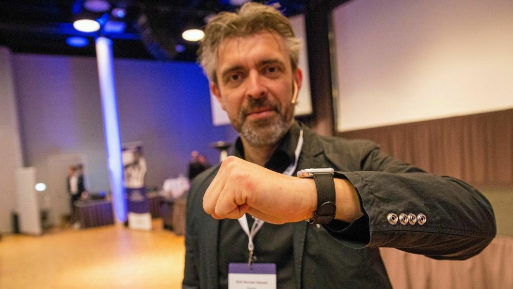 MERKET: Eirik Norman Hansenhar dilla på dingser, og har fåttinjisert en NFC-chip i hånda.- Foreløpig har den begrensetbruksområde, men dettekommer, sier han.